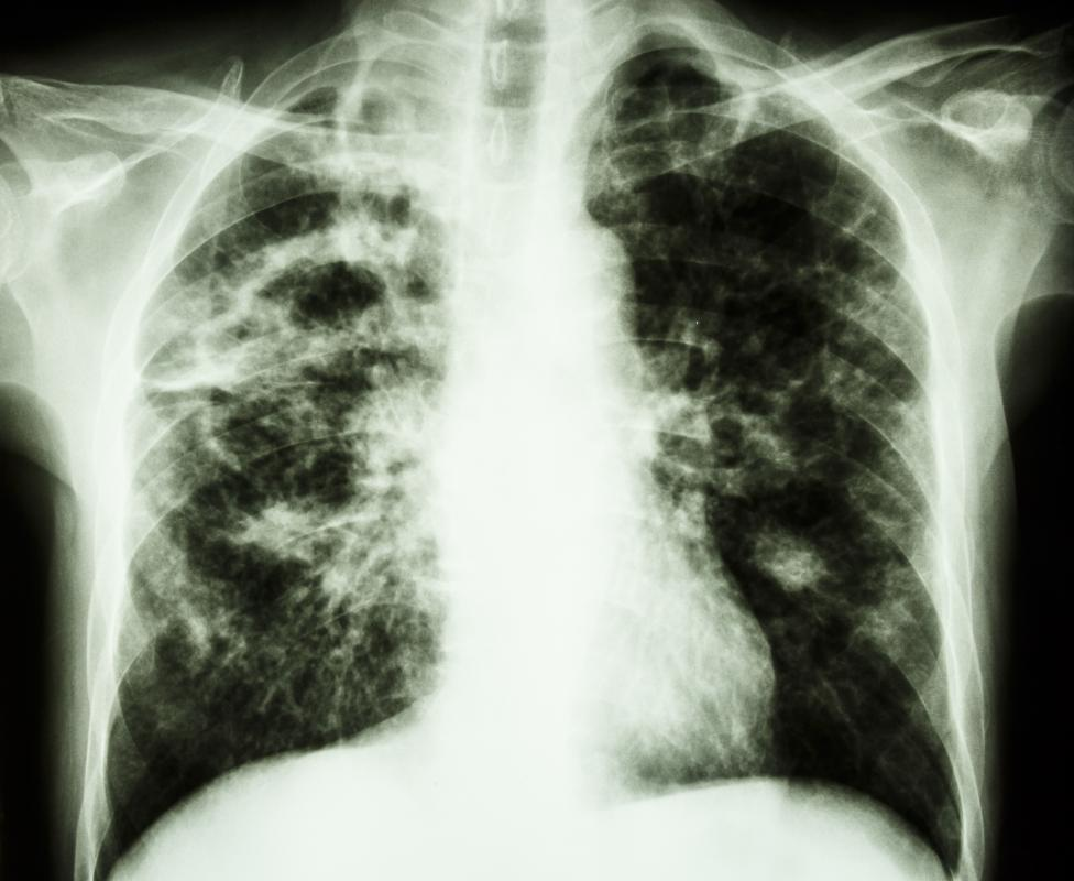 Tuberculosis most commonly lives and thrives in the lungs, although it may disseminate to other areas such as the lymph nodes.