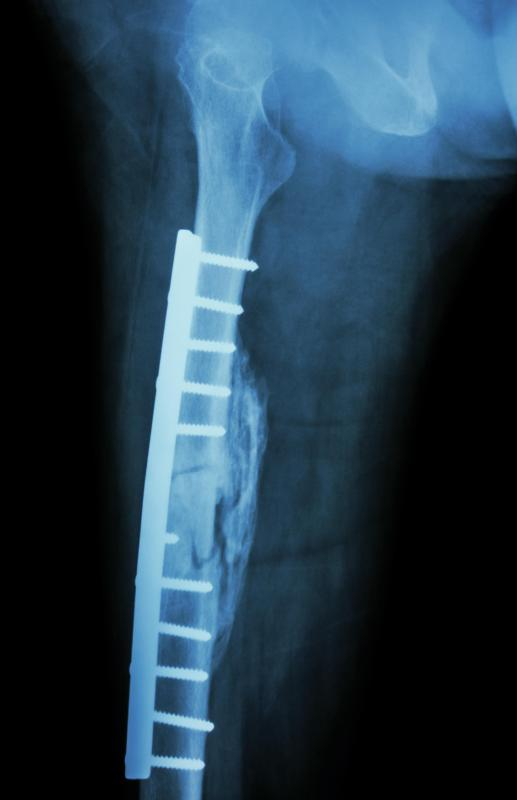 A cast can be used in conjunction with metal plates and bone screws.