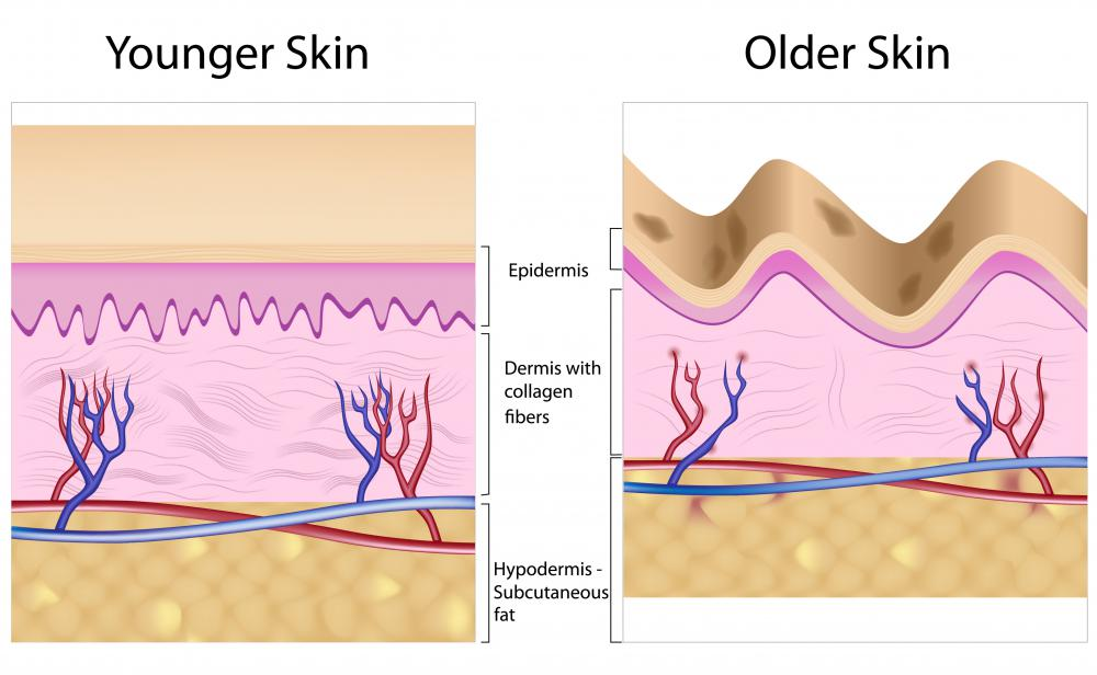 A diagram of younger skin and older skin showing how the decrease in collagen can lead to sagging and wrinkles.